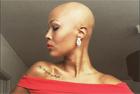 瑞典26岁秃头女子变身模特