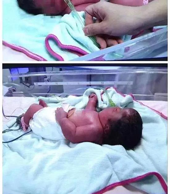 二胎妈妈为保胎打几百针生下畸形儿 产检未现异常