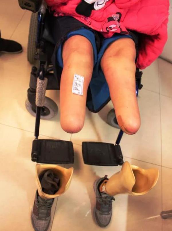高二女生被强奸后遭民警遗弃 双目失明双腿截肢