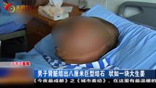 男子肾脏结出8厘米巨型结石 像一块生姜