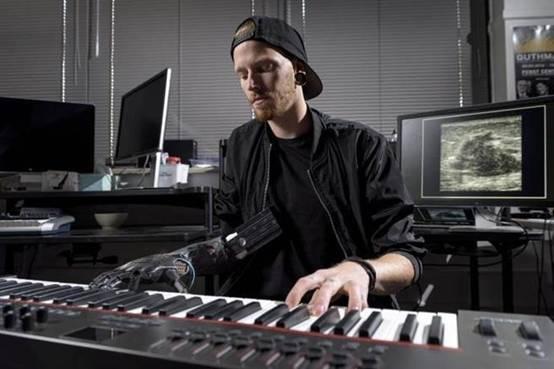 科学家发明超音波感应义手 可让伤者弹钢琴