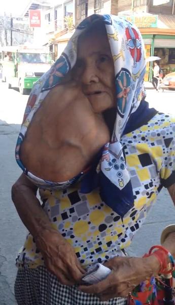 菲79岁老人去痣后引并发症 下颌长巨大肿瘤