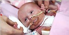 概率500万分之一!女婴心脏长在体外竟奇迹存活
