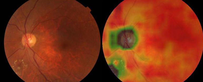 人工智能有望用于检查眼疾:比人更快更准确