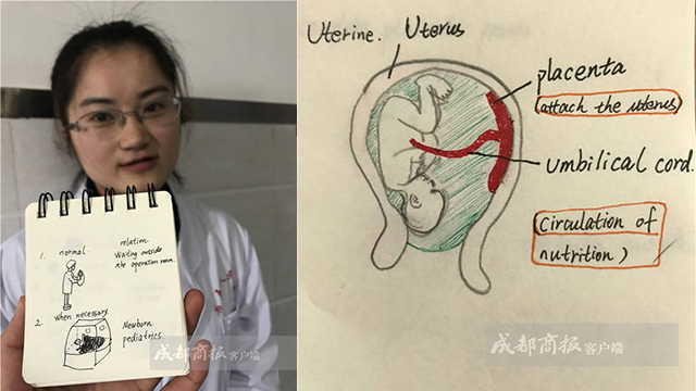 成都医生26条短信劝返高危外籍孕妇 插图让她看懂病情
