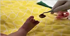 心疼!头发丝缠住脚趾 两月大宝宝险被截肢