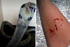 印尼少年被毒蛇咬伤身亡