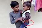 印3岁男童长30厘米尾巴