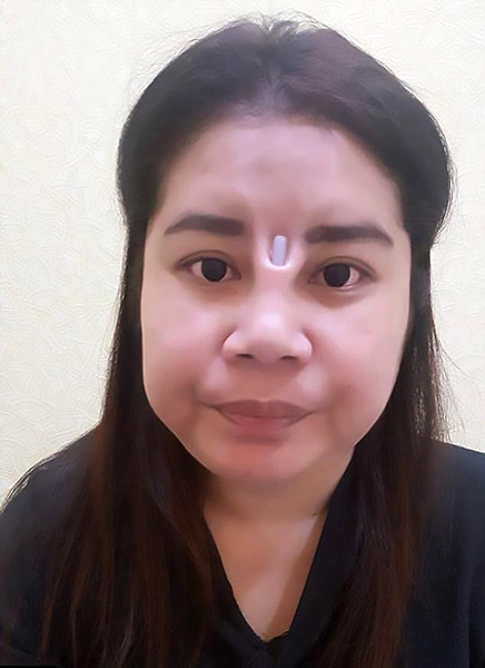 惊恐!泰女子隆鼻失败两眼间外露一截硅胶棒
