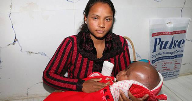 印度3月大男婴患脑水肿 脑袋为正常三倍大