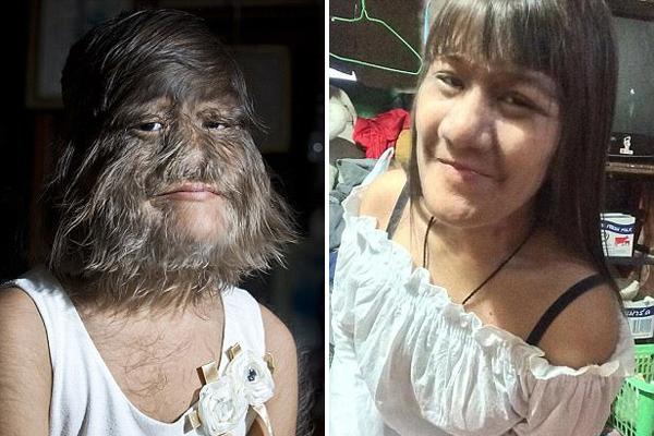 """""""世界最多毛女孩""""找到一生挚爱开始修发剔毛"""