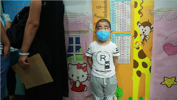 4岁男童患病节食500天 饿了偷吃味精