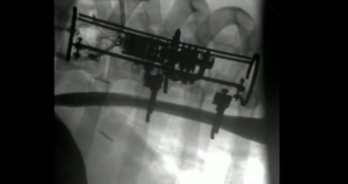 科学家创造新机器人植入物 可拉伸器官促组织生长