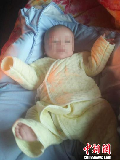 """宝宝出生竟是""""大象腿"""" 青紫肿块与大腿一样粗"""