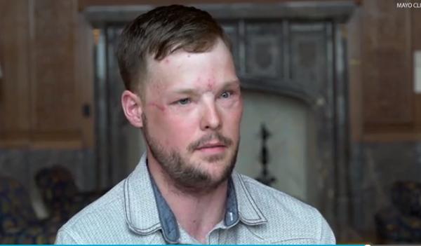 法男子第二次接受面部移植 曾两月没有脸等待捐赠