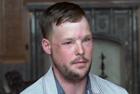 男子第二次接受面部移植