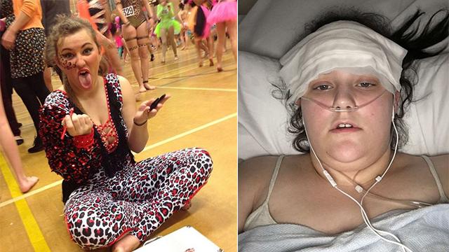 英国女孩声称接种宫颈癌疫苗几个月后变瘫痪