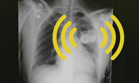物联网设备不止带来便利?你的心脏起搏器在监视你