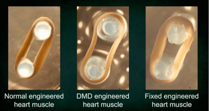 新的基因疗法可以治愈阻止心脏跳动的致命疾病