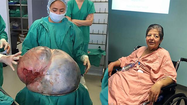惊人!女子手术摘除34千克重卵巢肿瘤 打破吉尼斯世界纪录
