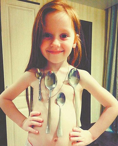 现实版万磁王:俄6岁女孩可用身体吸附金属勺