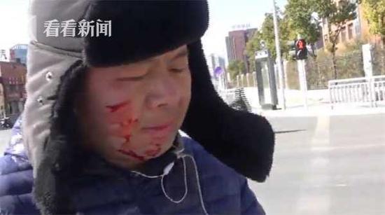 外卖员送餐途中遇车祸满脸鲜血 忍痛擦血先送外卖