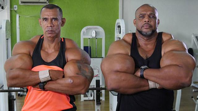 巴西两兄弟为获超大肌肉注射危险化学药剂