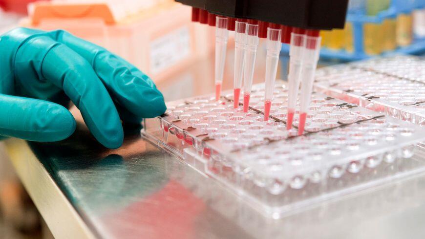 癌症治疗新曙光 检测癌症或许只需血液测试