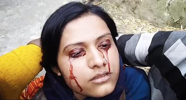 印度女子流血泪被认作女巫遭丈夫抛弃