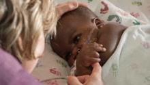 四个月大的女婴脸被寄生虫咬出洞 连眼都睁不开