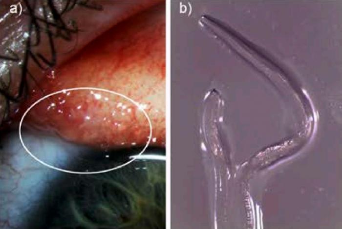 一女子骑马后眼睛里被发现感染有14条寄生虫