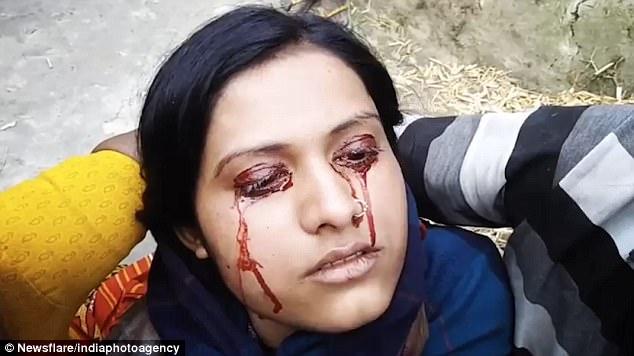 """印度女子患""""血汗症""""流血泪被认作女巫遭丈夫抛弃"""