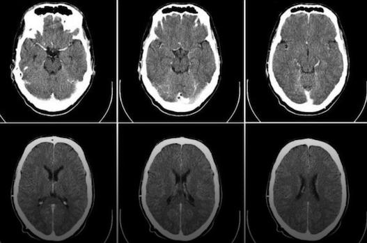 科学家发现修复大脑方法:中风或通过药物治愈