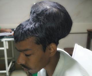 """印度医生摘除全球""""最大脑瘤"""" 重达1.8公斤"""