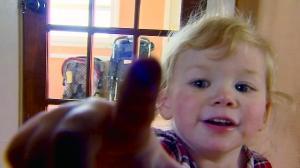对水过敏!这个宝宝不能哭 全球大约50名患者