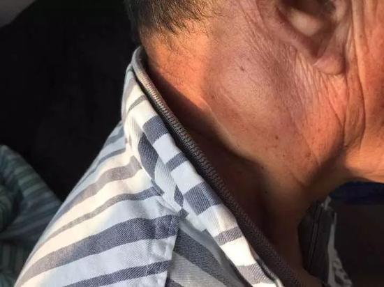 男子耳后长小疙瘩不在意 半年后检查已变癌症(图)