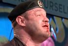 俄选手举重时鼻血横流