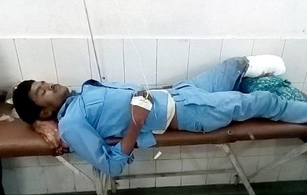 惊悚!印度一男子遭车祸截肢 将断肢当枕头
