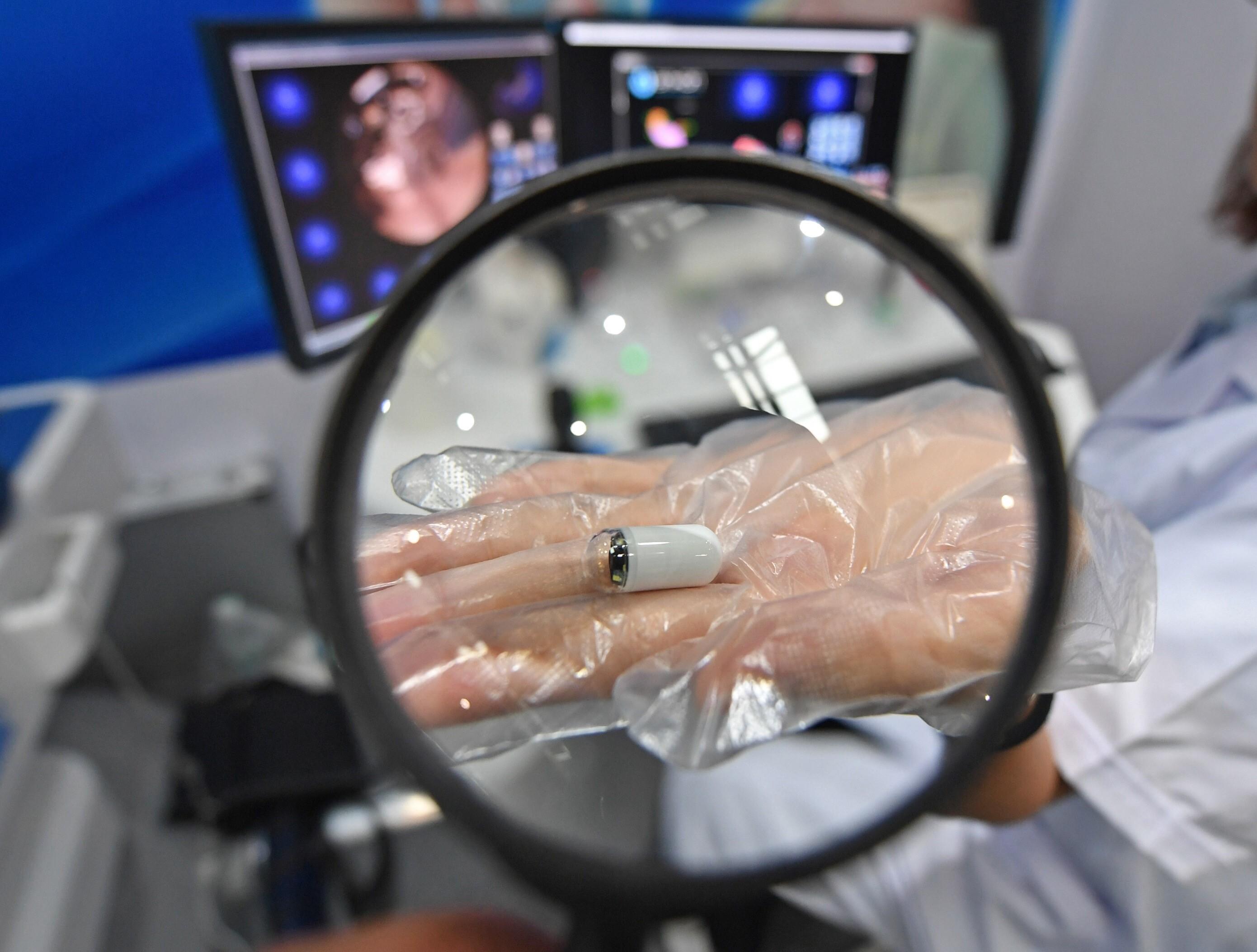 政协委员建议开展消化道癌筛查 胶囊胃镜进医保