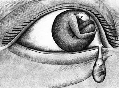 先天性青光眼30岁前都可能发病