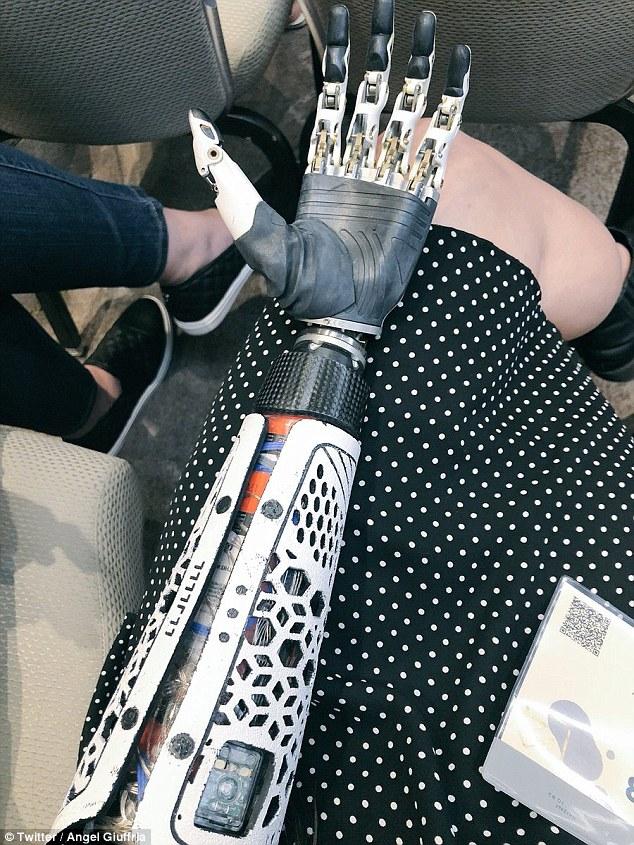 美残疾女子为高科技假肢充电的照片引网友热议
