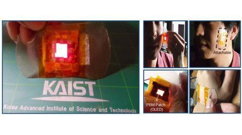 """韩国研究员发明""""OLED贴片"""" 利用光来治疗伤口"""