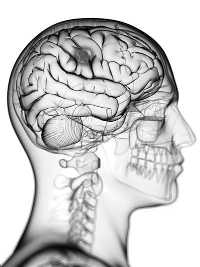 大脑长肿瘤 中青年发病率最高