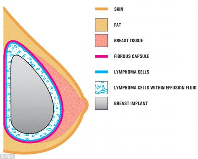 美国食品药品管理局:丰胸手术增加患癌症风险