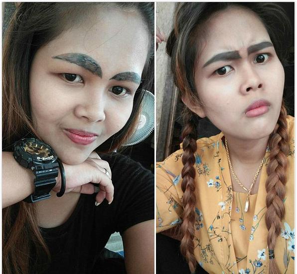 泰国:女子纹眉失败留下黑粗浓眉 做激光清除手术