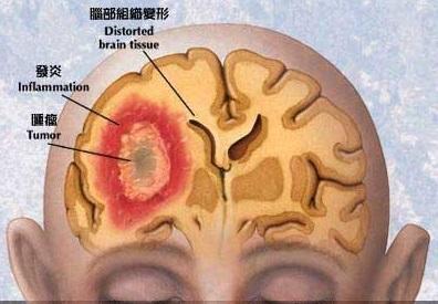 中青年最容易得脑部肿瘤