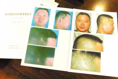 男子做手术致头部瘢痕增大 状告美容院索赔3万