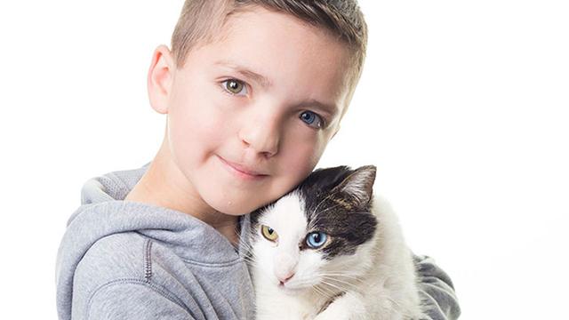 奇观!兔唇男孩虹膜异色 7岁时遇到运气相反的猫