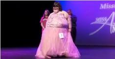 15岁少女患病永远觉得饿 吃到340斤爸妈吓得锁冰箱