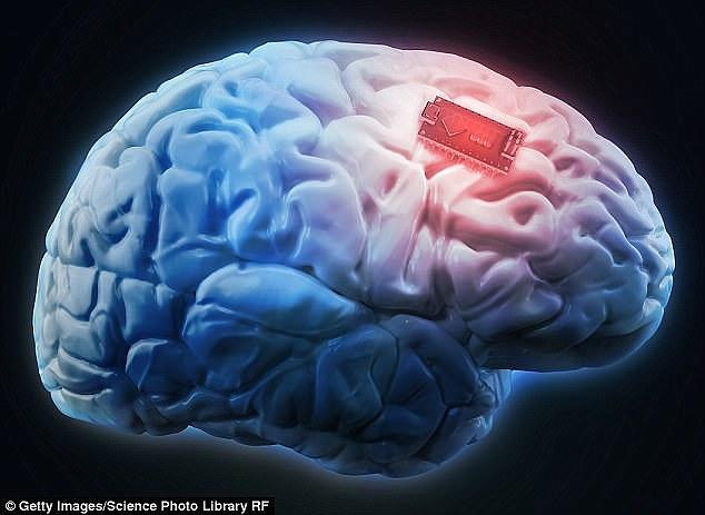 马斯克旗下公司规划动物实验 人脑植入芯片将成真